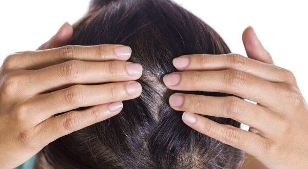 psoriasi cuoio capelluto rimedi